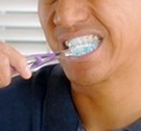 La higiene bucal es importante para el manejo y autocuidado de la diabetes