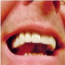 Cómo afecta la diabetes a tu salud oral