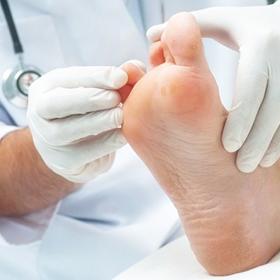 Síntomas y tratamiento del pie diabético
