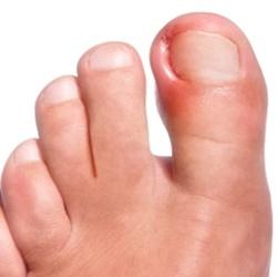 Las uñas encarnadas pueden ser una complicación para los diabéticos