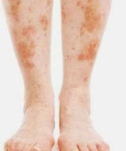 Condiciones de la piel relacionadas con la diabetes