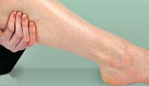 Diabetes y las complicaciones de la piel